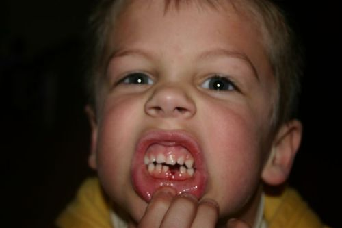 Coops_1st_tooth_loss_001
