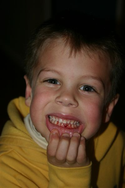 Coops_1st_tooth_loss_002