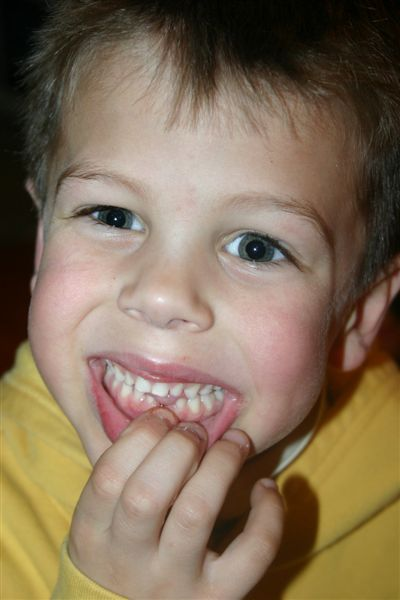 Coops_1st_tooth_loss_008