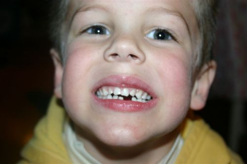 Coops_1st_tooth_loss_009
